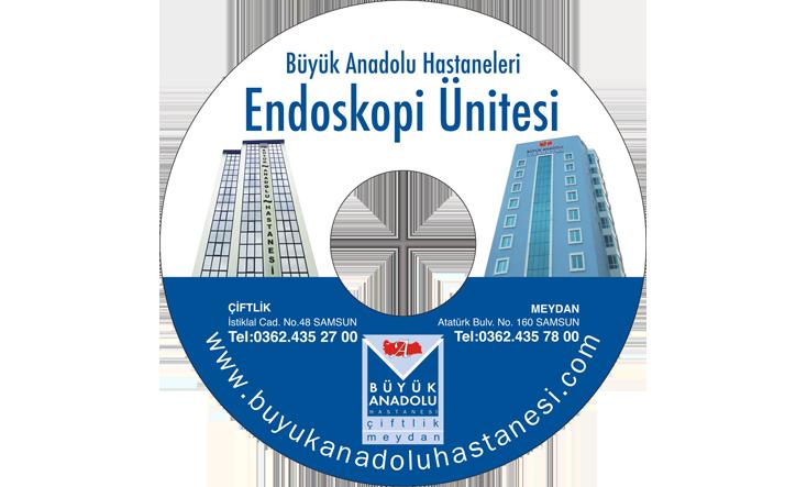 Büyük Anadolu Hastanesi CD Baskı İşlemi